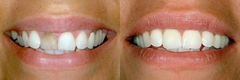 Smile Gallery - Oswego Dental, Oswego Dentist