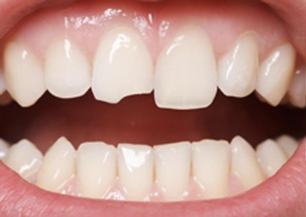 Cosmetic Bonding  - Oswego Dental, Oswego Dentist