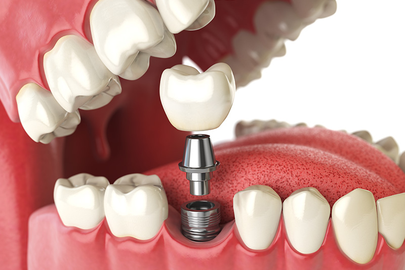 Dental Implants - Oswego Dental, Oswego Dentist