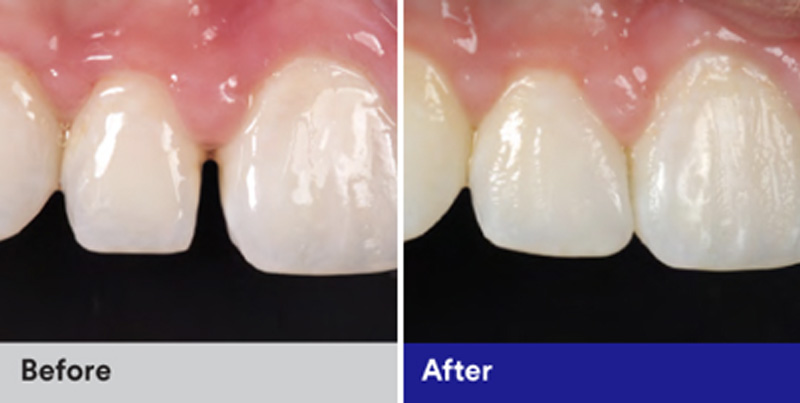 BioClear Diastema Closure and Black Triangle Closure  - Oswego Dental, Oswego Dentist