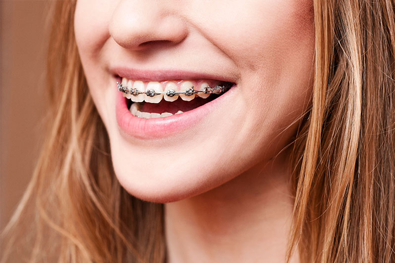 Orthodontics - Oswego Dental, Oswego Dentist