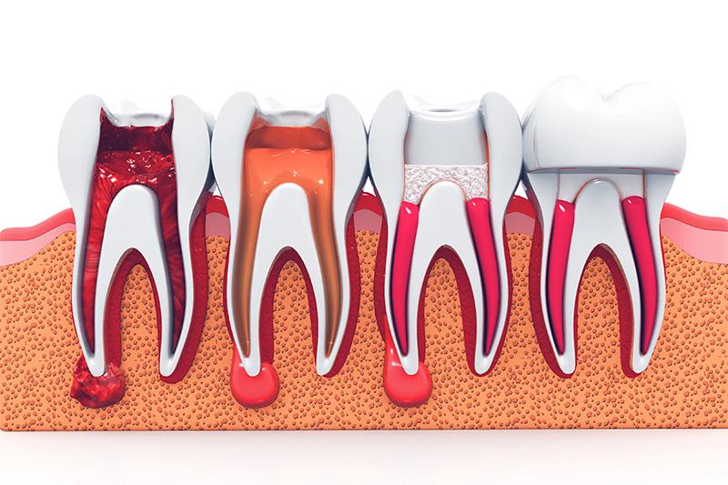 Root Canal Therapy  - Oswego Dental, Oswego Dentist