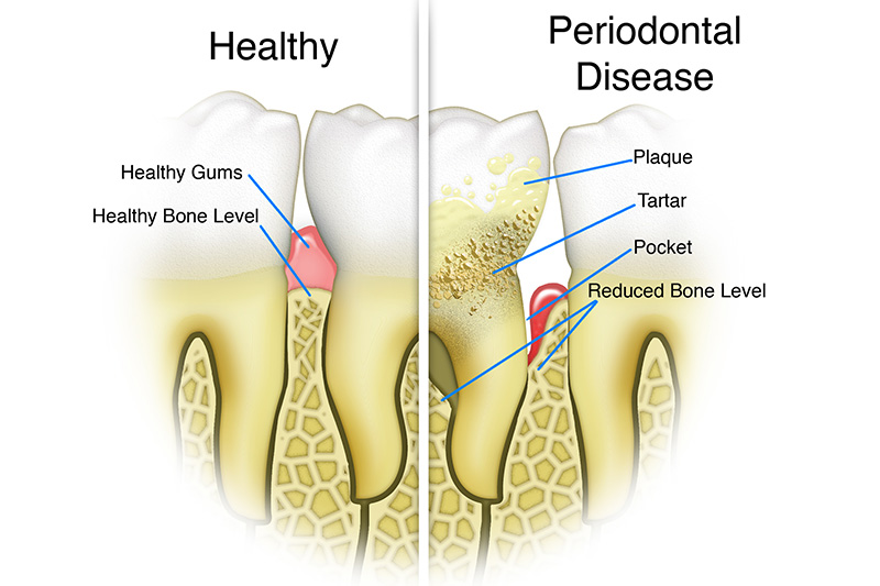 Scaling & Root Planings (Deep Cleanings)  - Oswego Dental, Oswego Dentist