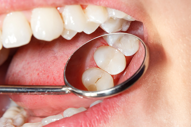 Tooth Colored Composite Fillings  - Oswego Dental, Oswego Dentist