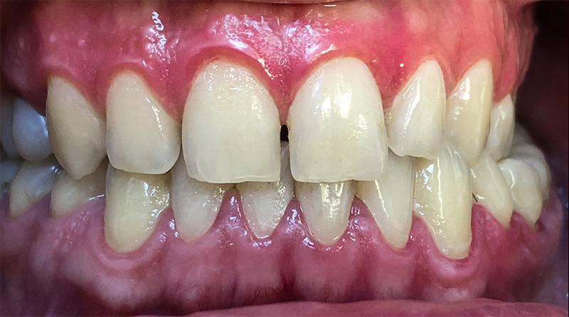 Veneers  - Oswego Dental, Oswego Dentist