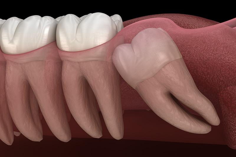 Wisdom Teeth Extractions (with Sedation)  - Oswego Dental, Oswego Dentist