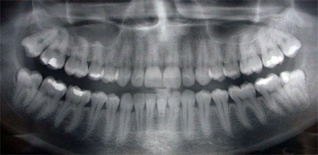 Oswego Dental